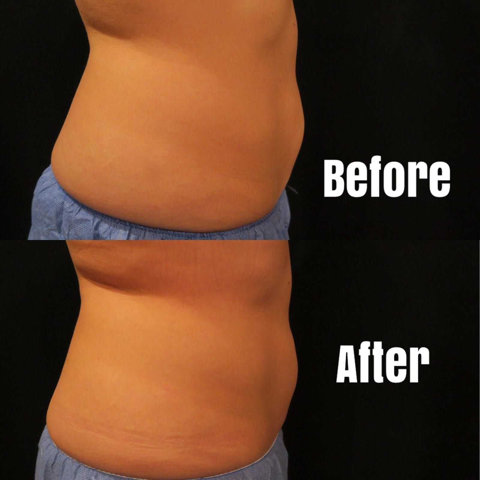 These are close up pictures of the right side of my love handles (flanks) before and after one round of coolsculpting.
