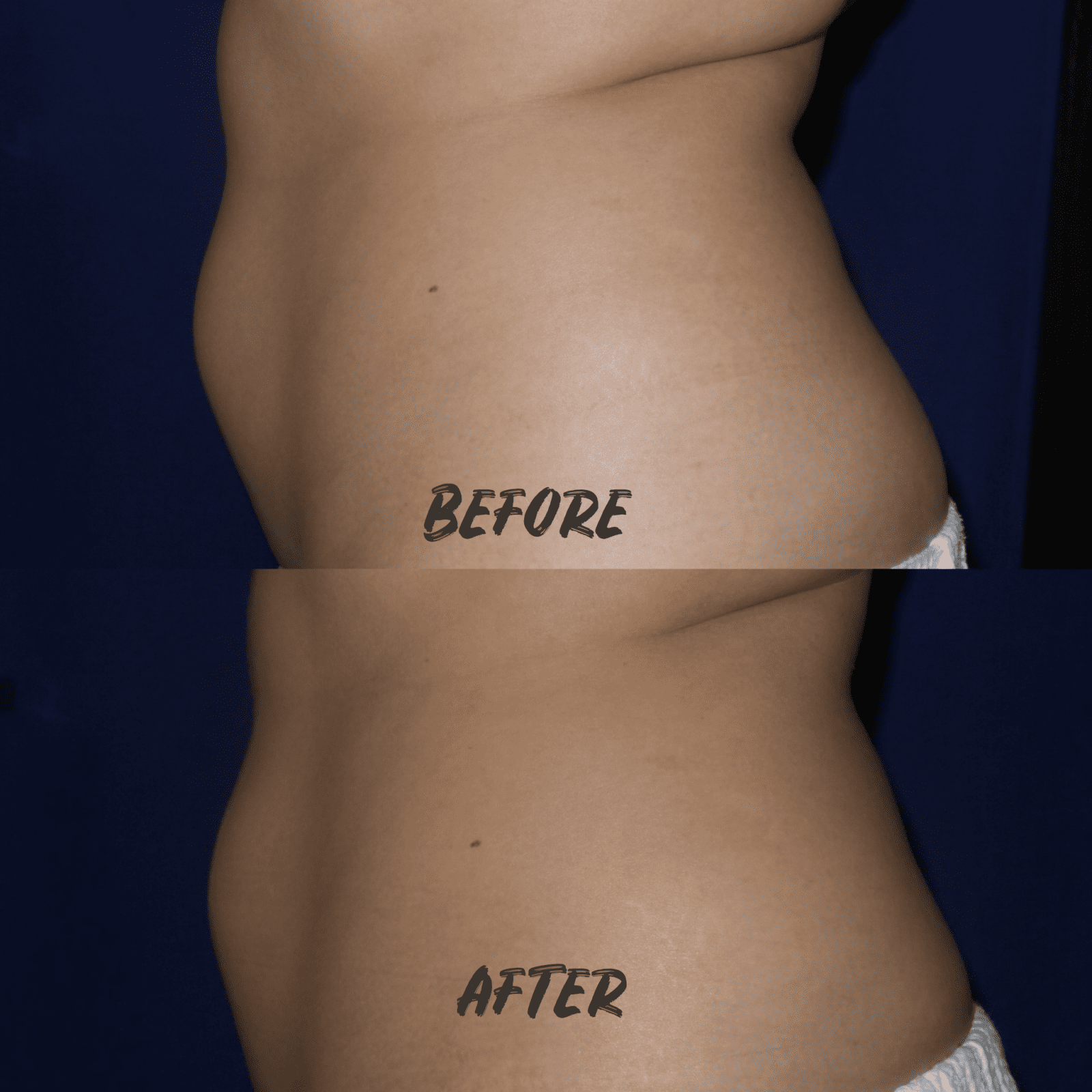 This is a before and after body contouring shot of the front view of my side profile from the left angle.
