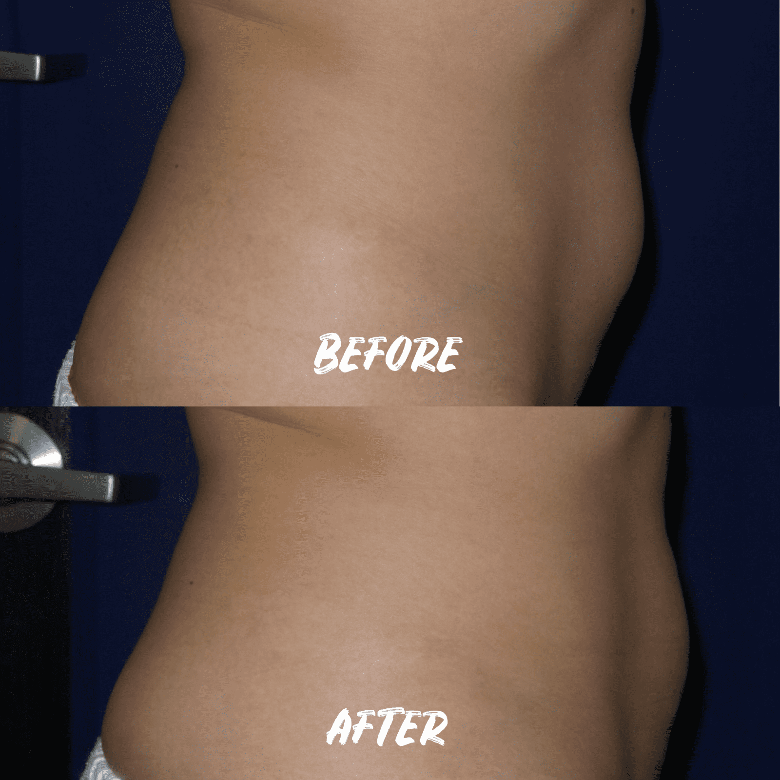 This is a before and after body contouring shot of the side view of my right love handle.