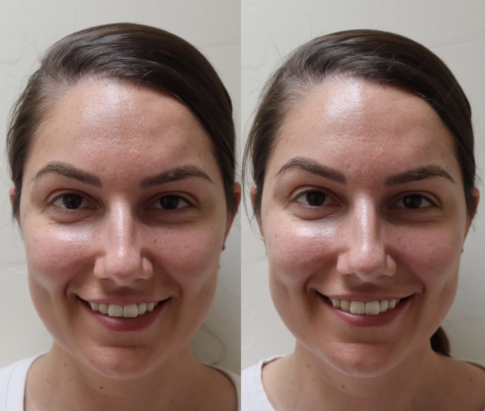 This is a before and after shot of Adaleta Avdic from using FOREO BEAR.